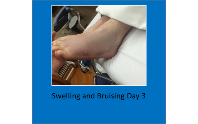 Swelling and bruising day 3