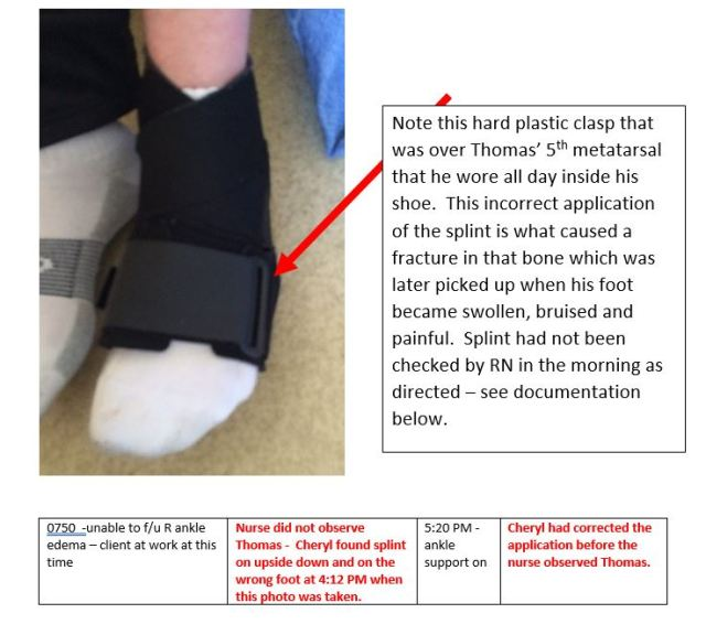 splint-on-wrong-foot-upside-down